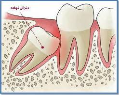با اين محلول درد دندان هايتان را تسكين دهيد