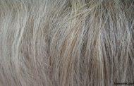 پوست و موهای سفید، ارمغان این