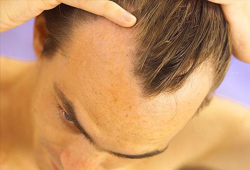 ریزش موهای ارثی قابل درمان است