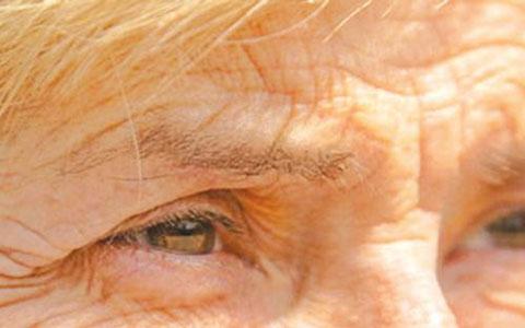 شایع ترین بیماری پوستی در فصل پاییز