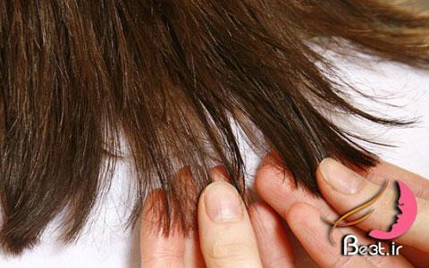 بیماریهایی که باعث ریزش مو میشوند
