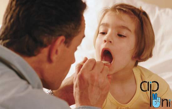 بهترین روش درمان گلودرد ویروسی