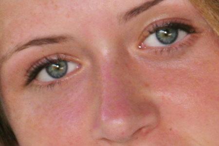 میانبر خطرناک از بین بردن خالهای پوستی