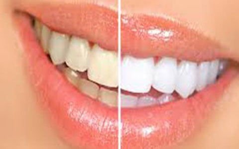 با دندان های زرد چه کنیم؟