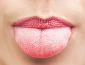 سوختگی زبان و درمان آن(Burned Tongue Cure)