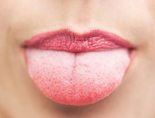 درمان سوختگی زبان
