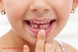 به هیچ عنوان دندان شیری و بند ناف کودک را دور نیندازید.