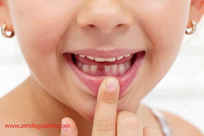 بند ناف کودک و دندان شیری او را نگه دارید.