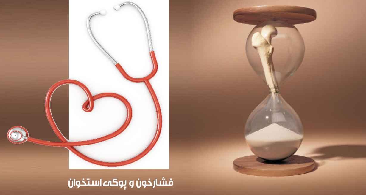 دکتر حسین جلالی : پوكـی استخـوان و فشارخون دو  بیماری خاموش