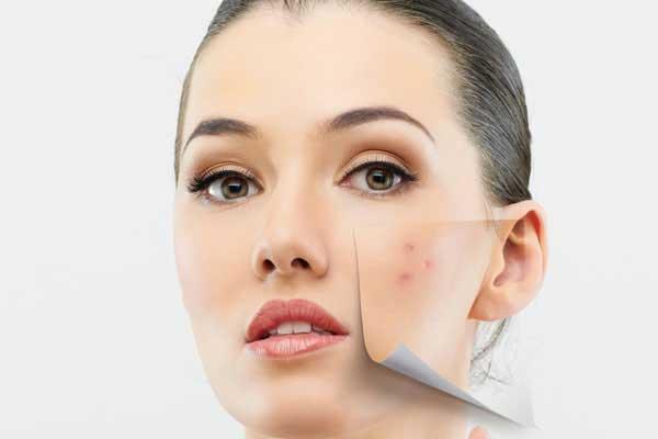 درمان جوش و لکه های پوستی