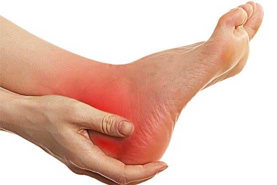 خار پاشنه پای خود را با شیوه سنتی درمان کنید./درمان خارپاشنه
