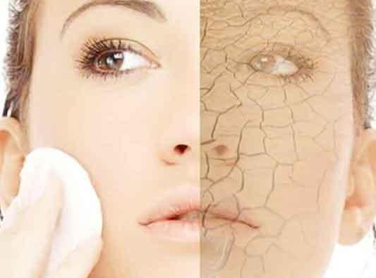 خشکی پوست در سرما