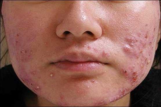 درمان جوش ناگهانی صورت