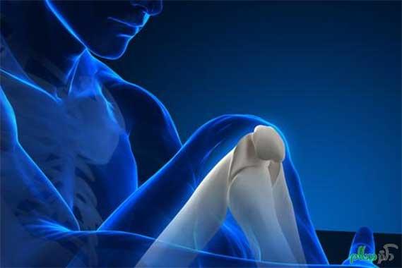 پوکی استخوان(Osteoporosis) چیست؟همه چیز درباره پوکی استخوان
