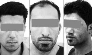بازداشت سارقان مسلح