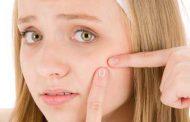 برای از بین بردن جوشهای(آکنه) صورت و بدن چه کنیم؟