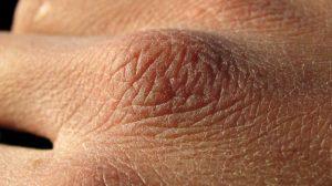 برای رفع خشکی پوست(skin dryness) چه کنیم؟