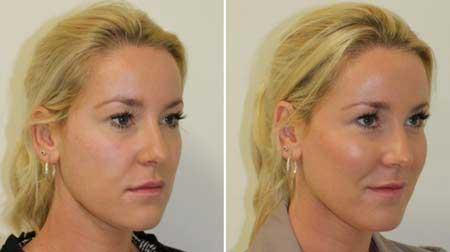 تزریق چربی به گونه برای پرشدن صورت خوب است؟