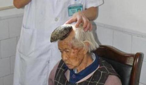 زن شاخدار چینی / شاخی که موجب هراس دیگران شد