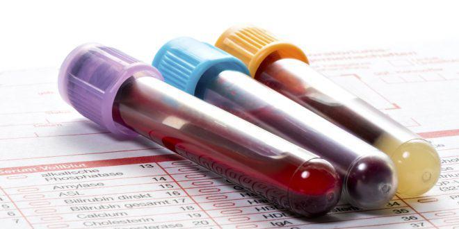 مفهوم نوشته های درون برگه آزمایش خون شما چیست؟