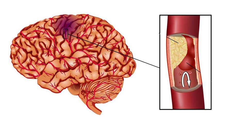 کم تحرکی و خطر بروز سکته مغزی