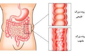 التهاب سیستم گوارش و مشکلات آن