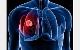تشخیص زودهنگام سرطان ریه با نانوزیست حسگر