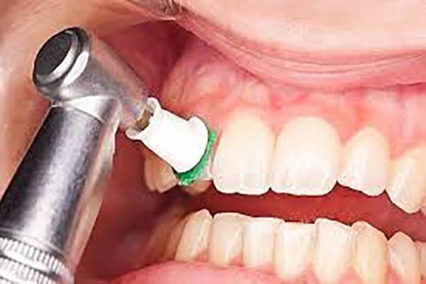 جرم گیری و بروساژ دندان با ۸۱ درصد تخفیف