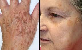 از بین بردن لکه های پوست
