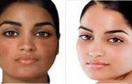 همه چیز درباره سفید کردن پوست