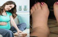 علت و درمان ورم یا ادم مچ و قوزک پا در بارداری