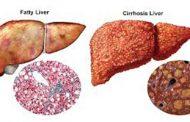 تشخیص بیماری کبدی