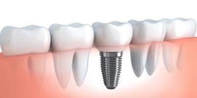 نکات مهم برای عمل ایمپلنت دندان