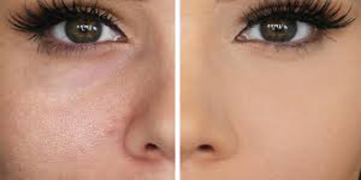 پوستی بدون منافذ داشته باشید