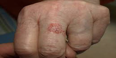 بیماری پوستی بوون