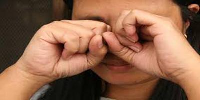 درمان خارش چشم