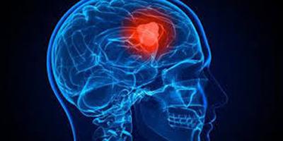 ریسک متاستاز مغز در مبتلایان به سرطان