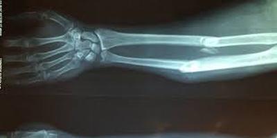 ترمیم شکستگی استخوان با آهن ربا
