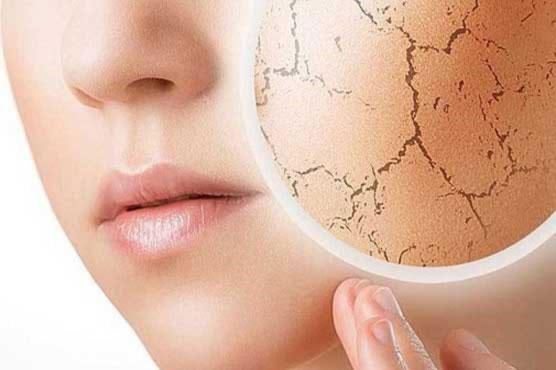 جلوگیری از خشکی پوست در زمستان